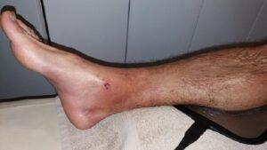Lečenje povrede skočnog zgloba