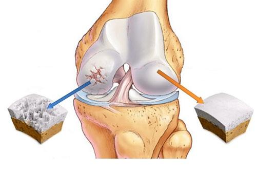 Bol u zglobu kolena