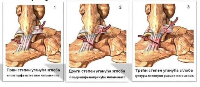 Oboljenja i povrede kostiju
