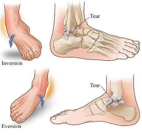 Uganuće skočnog zgloba-simptomi, terapija do izlečenja